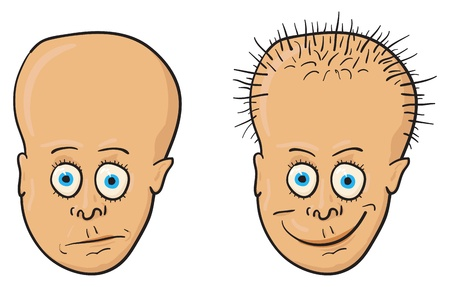 Comic vector illustration - A patient with a bald head and growing hair