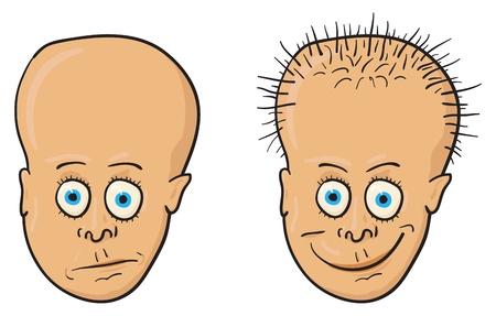 Comic vectorillustratie - een patiënt met een kaal hoofd en groeiend haar