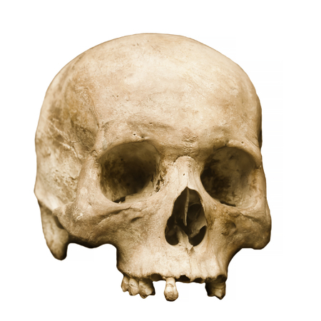 detailed image: Highly detailed image of a human skull, minus the jaw, displayed against a white background.  Some teeth remain, and pores in the bone are clearly visible.