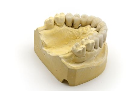 prothesis: Dental prosthesis on the chalk model