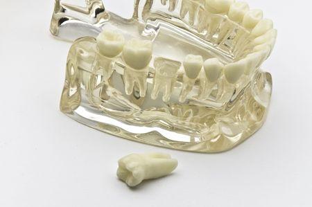 Transparent dental model on white background photo