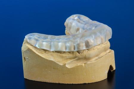 splint: férula dental para prevenir el bruxismo