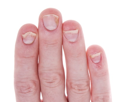 affected: Fingernails affected by psoriasis