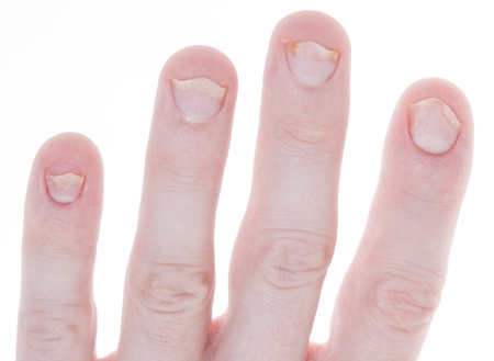 Shot of typical Psoriasis, a skin disease that has caused damage to these fingernails