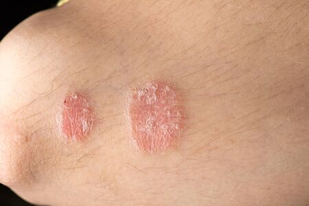 skin disease: skin disease psoriasis closeup Stock Photo