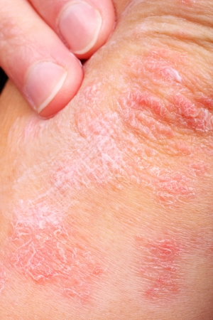psoriasis: applying an emollient to dry flaky skin as in the treatment of psoriasis, eczema and other dry skin conditions