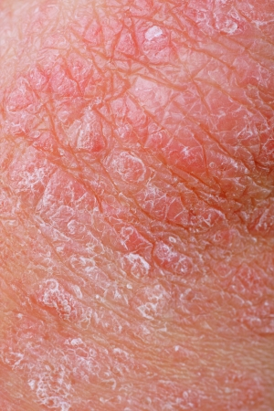 close-up of a patients elbow showing plaques of dry skin typically seen with psoriasis Stock Photo - 8791589