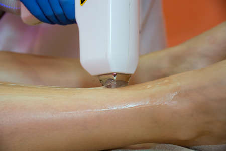 Laser hair removal procedure in a beauty salon. Removal of unwanted leg hair. Master works with a laser hair removal machine, hands close-up