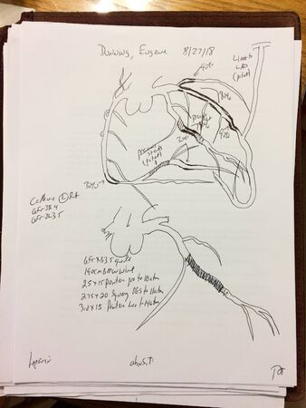 Heart diagram hand drawn by surgeon on white paper