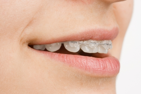 fix jaw: Close-up of teeth with braces.