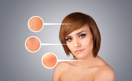 Beautiful young girl with facial care arrow signs of damaged skin on gradient Stock Photo - 25358605