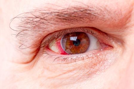 와이드 오픈 빨간색과 자극 인간의 눈을 가까이 스톡 콘텐츠