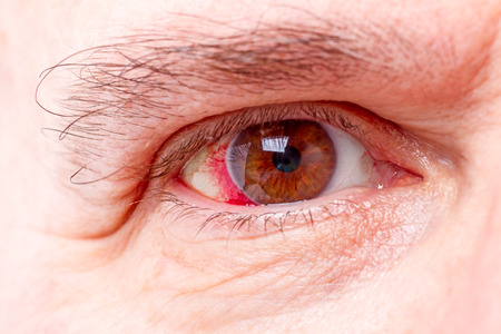 sore eye: Close up of wide open red and irritated human eye Stock Photo