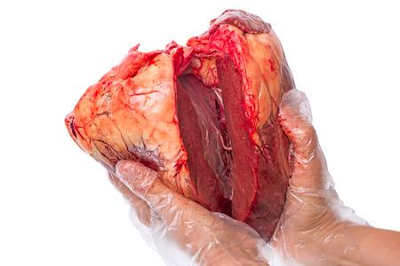 donacion de organos: Corazón roto en una mano femenina aislada en un fondo blanco
