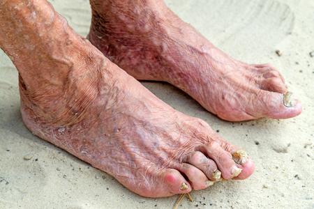 diseased: Diseased legs of an old woman on the sand