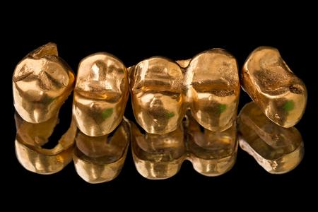 prosthetic: Gold dental crowns (prosthetic teeth) isolated on black background Stock Photo