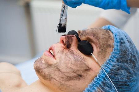 Dermatologist smears black mask on face for laser photorejuvenation and carbon peeling. Dermatology and cosmetology. Using surgical laser.