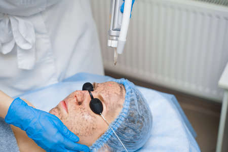 Laser photorejuvenation and carbon peeling of face for woman. Black face mask. Dermatology and cosmetology. Using surgical laser.
