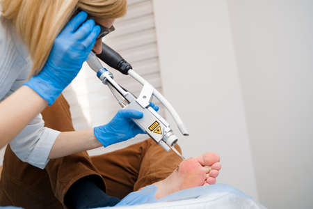 Laser removal of warts on the foot. Medical dermatological surgery in the clinic.