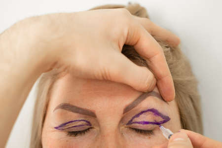 Blepharoplasty markup close-up on the face before the plastic surgery operation for modifying the eye region of the face in medical clinic. Doctor doing plastic cosmetic operation