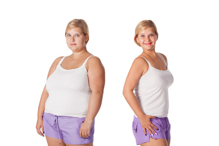 beautiful fat woman before and after weight loss. rejuvenation. liposuction Stockfoto