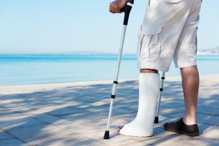 pierna rota: Un hombre herido con un yeso en la playa