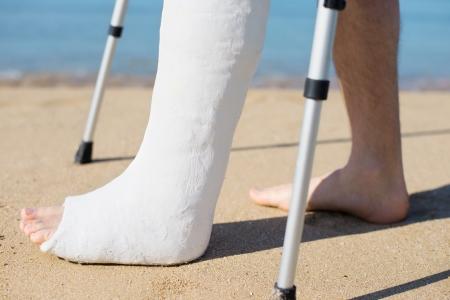 pierna rota: Hombre con yeso para caminar en la playa con la ayuda de muletas Foto de archivo