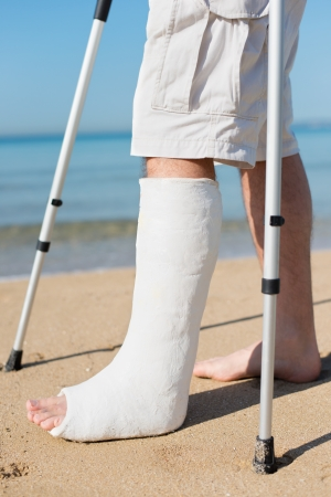 plaster foot: Man with leg plaster at a beach trying to walk