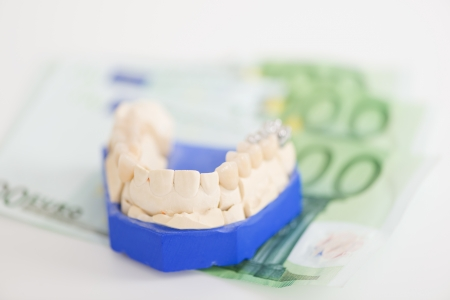 false teeth: Closeup of artificial teeth on paper currency in workshop Stock Photo