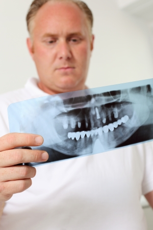 dentalcare: Low angle view of male dentist analyzing Xray in clinic