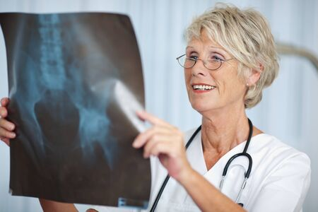 orthopaedic: Portrait of senior female doctor looking at hip Xray report in hospital