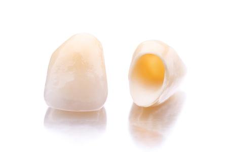 laboratorio dental: Primer plano de dos dientes artificiales aisladas sobre fondo blanco Foto de archivo