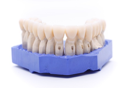 out of production: Front view of prosthetic teeth organized on a blue support base isolated on white background