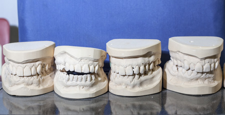 dental impront photo