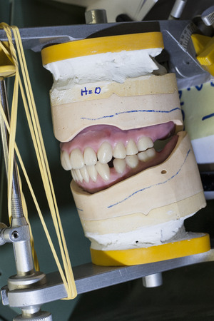 denture work in progress photo