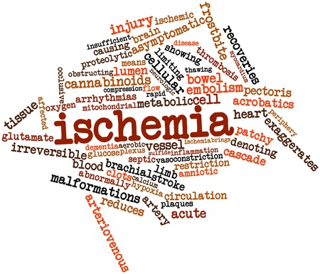 admissions: Abstract word cloud for Ischemia with related tags and terms Stock Photo