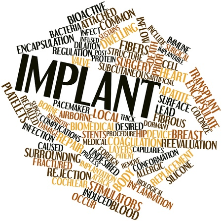 pacemaker: Abstract word cloud for Implant with related tags and terms Stock Photo