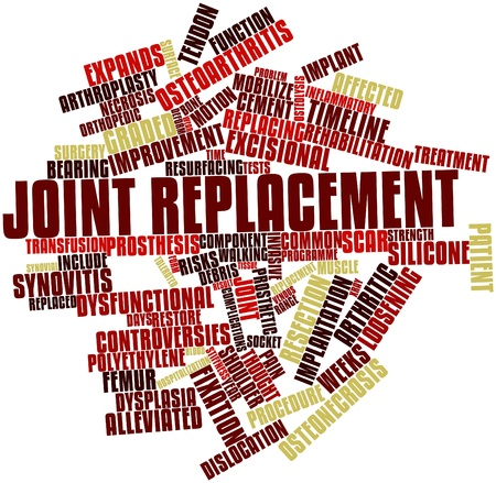 replacement: Abstract word cloud for Joint replacement with related tags and terms Stock Photo