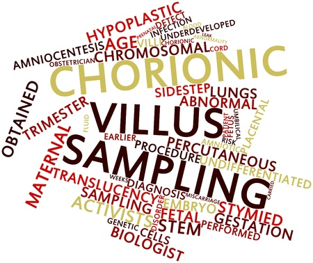 villus: Abstract word cloud for Chorionic villus sampling with related tags and terms Stock Photo