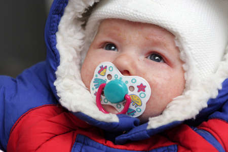 eczema: The infant has eczema on his face