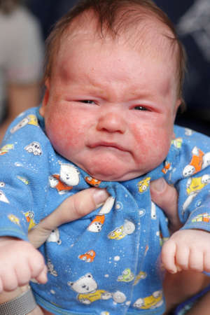 Retrato de bebé llorando con eczema en su cara Foto de archivo - 9651378