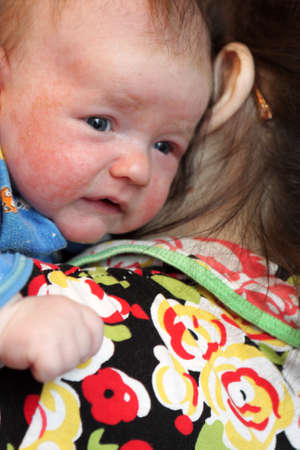 The mother holds the baby with eczema photo