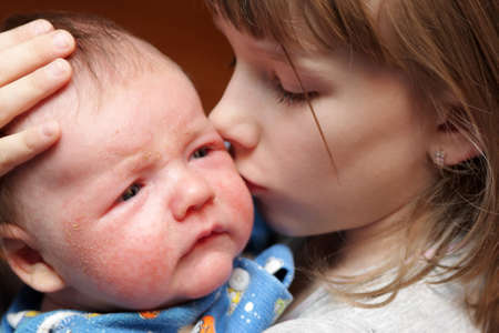 The sister kisses her sick brother with eczema