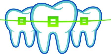 odontologia: aparatos dentales Vectores