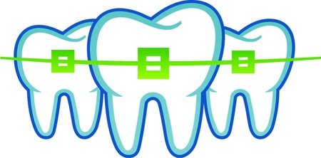 dental braces Vector