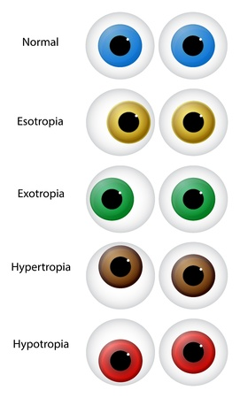 eyeball: Illustration Of Different Eye Disorders. Gaze disorders or ocular misalignment disorders (strabismus) include: esotropia, exotropia, hypertropia and hypotropia.