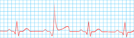 Heart Attack Stroke On Electrocardiogram Record Vector