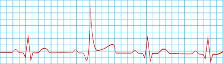 heart ecg trace: Heart Attack Stroke On Electrocardiogram Record