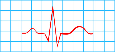 Normal Atrial And Ventricular Depolarization On Electrocardiogram Illustration
