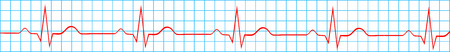 stress test: Heart Normal Sinus Rhythm On Electrocardiogram Record